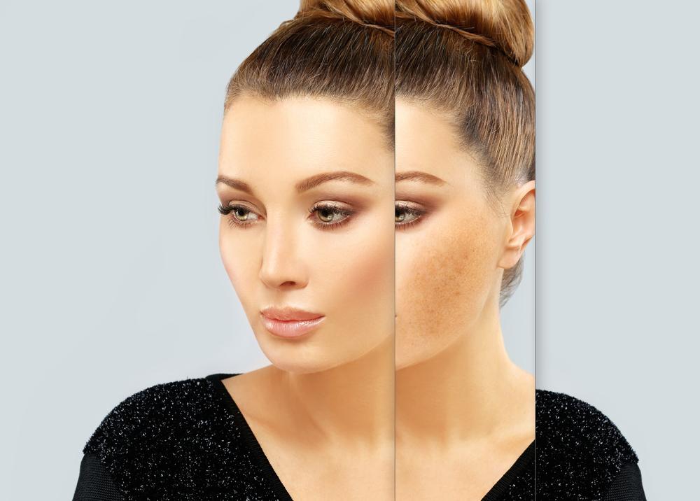 Pigmentace na obličeji v těhotenství