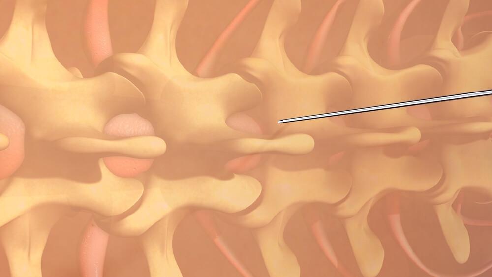 Epidurální analgezie