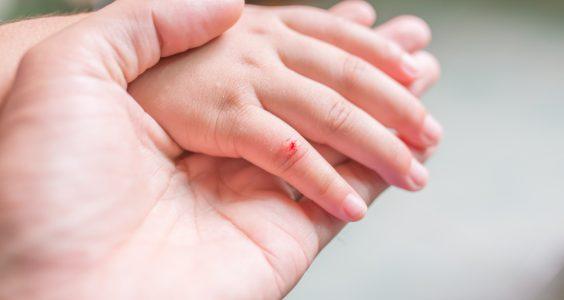 Ošetření ran u dětí