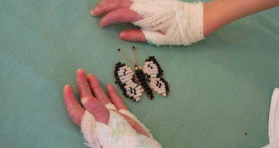 Nemoc motýlích křídel 11