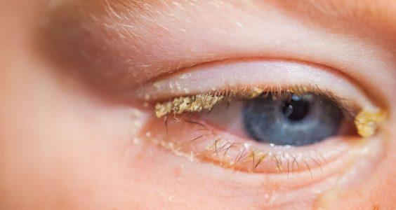 Zánět očních spojivek u dětí – konjunktivitida 5