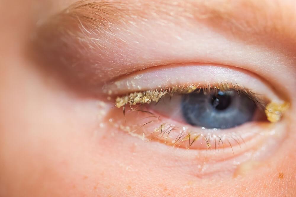 Zánět očních spojivek u dětí – konjunktivitida 1