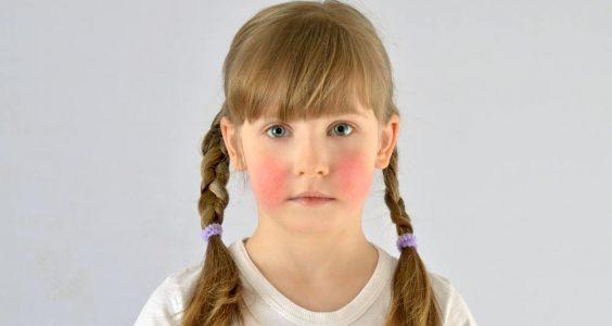 Pátá Dětská Nemoc
