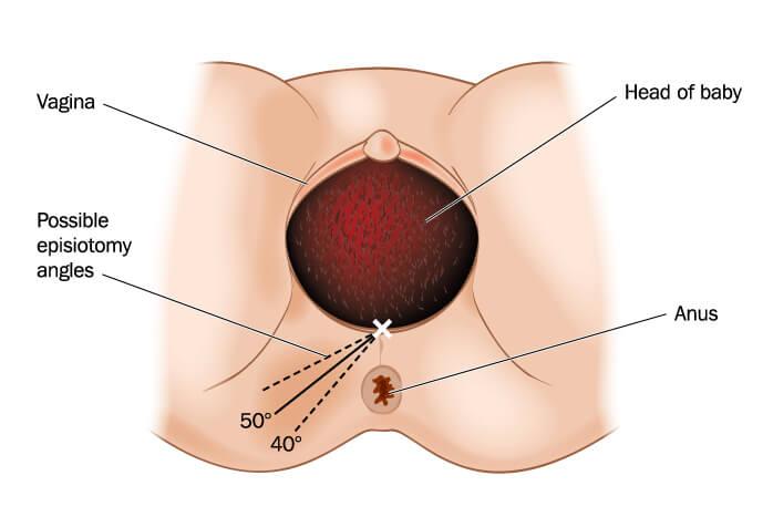 Nástřih hráze - epiziotomie