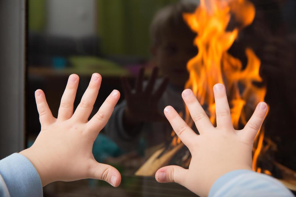 popáleniny u dětí