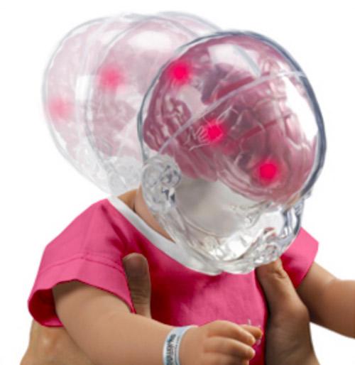 Znázornění vzniku syndromu třeseného dítěte