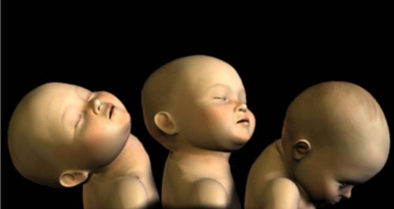 Syndrom třeseného dítěte 15