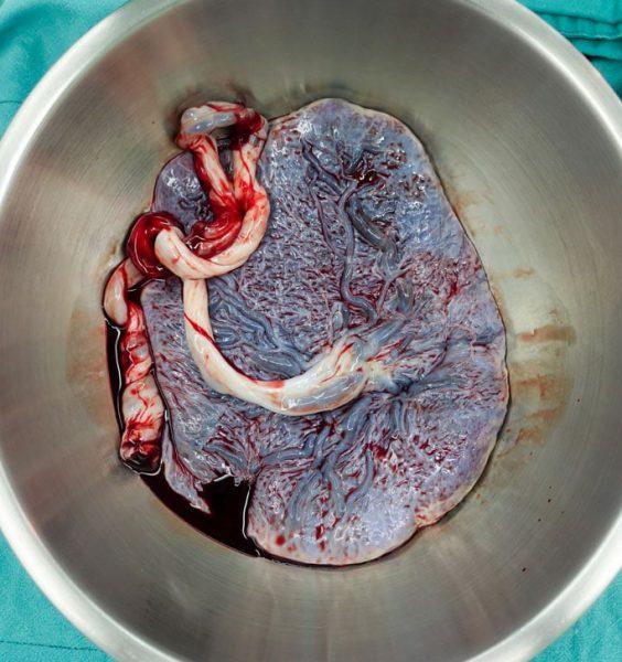 Placenta, neuvěřitelný orgán 3