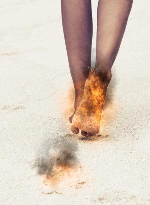 Popálené nohy od plážového písku