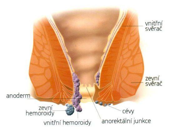 Hemoroidy v těhotenství