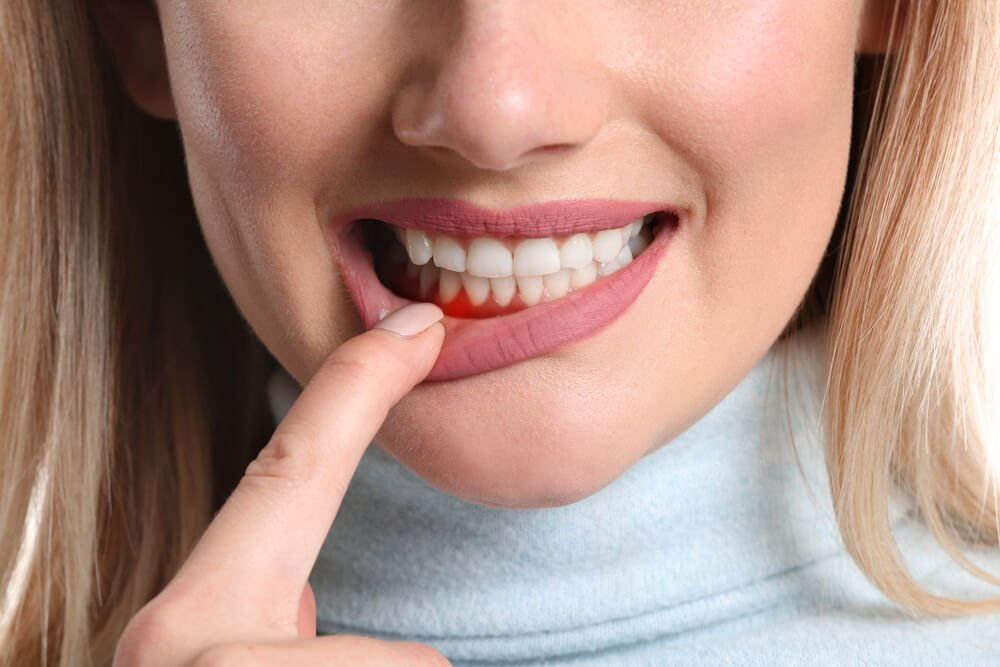 gingivitida